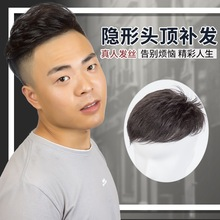 Man hair top hairpin hairline hairline haircut hair replacement wig male top baldness replacement block